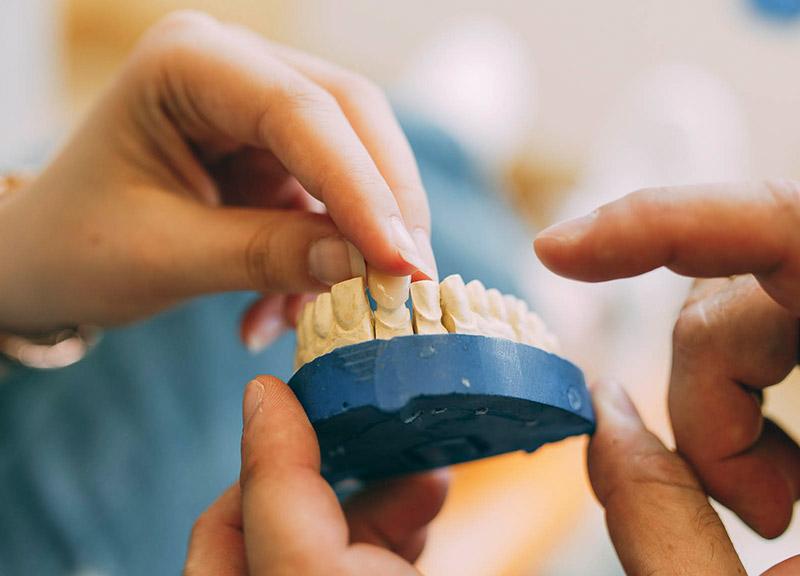 Zahnästhetik Leverkusen kümmert sich um ästhetischen Zahnersatz.